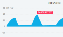 BaroProtect - French